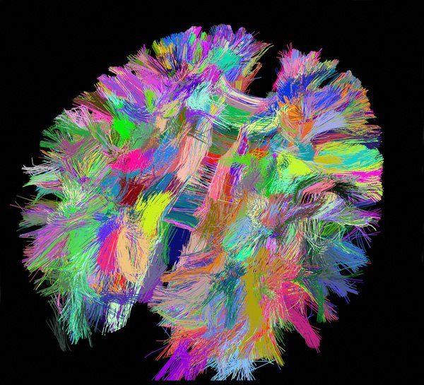 Principaux faisceaux de connexions cérébrales reconstitués à partir d'images d'IRM