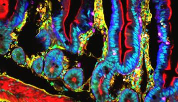 Image confocale du système immunitaire des cellules du petit intestin